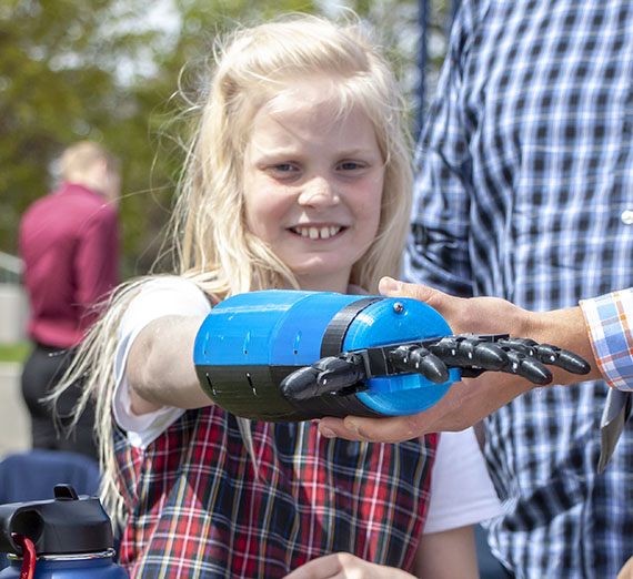 girl tries on prosthetic hand