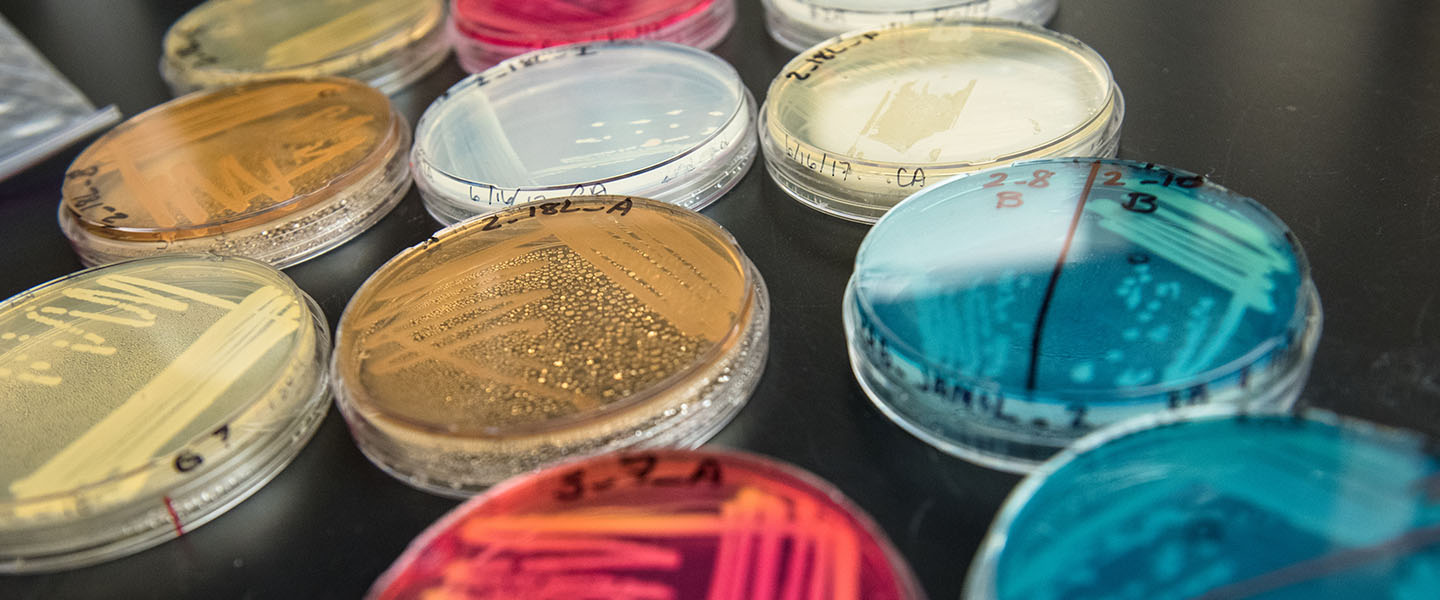 Close up of petri dishes